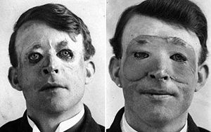 Walter Yeo, the first person to receive plasti...
